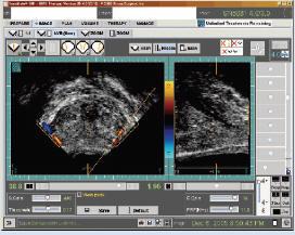 Ультразвуковая детекция сосудисто-нервного пучка