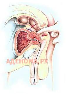 Методы лечения начальной стадии простатита
